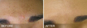 HydraFacial-before-after-BrownSpots