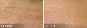 HydraFacial-before-after-FineLines